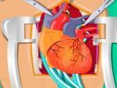 Heart Surgery 2